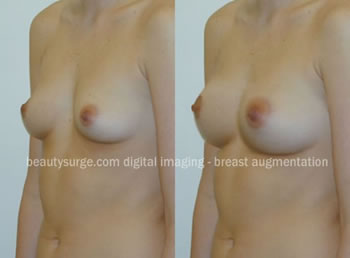 This image shows how plastic surgery digital imaging can simulate breast augmentation surgery. No surgery was performed. Surgical results may differ.
