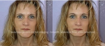This image shows how plastic surgery digital imaging can simulate chin reduction and brow lift surgery. No surgery was performed. Surgical results may differ.